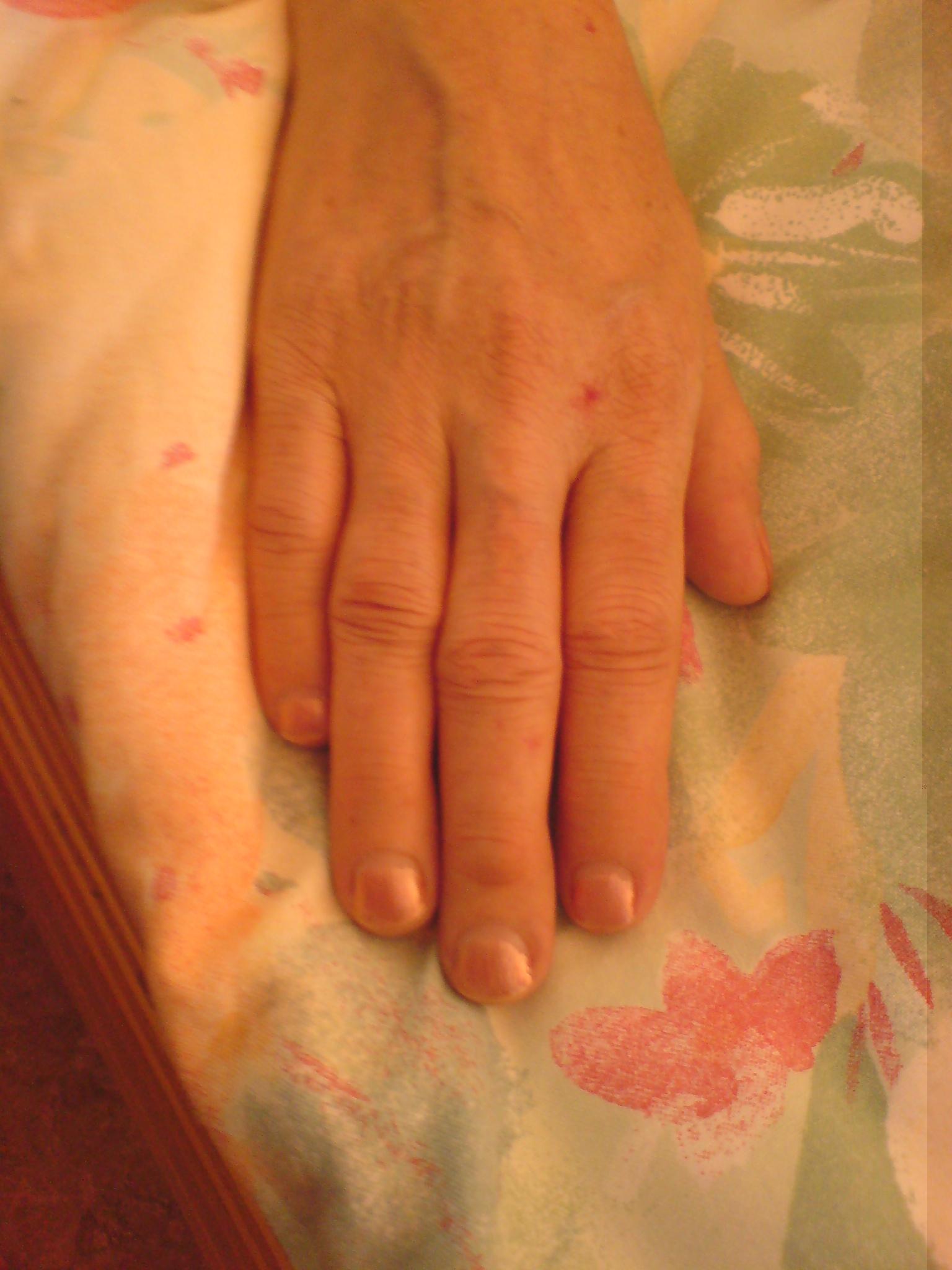 Leberzirrhose Demenz Für Anfänger